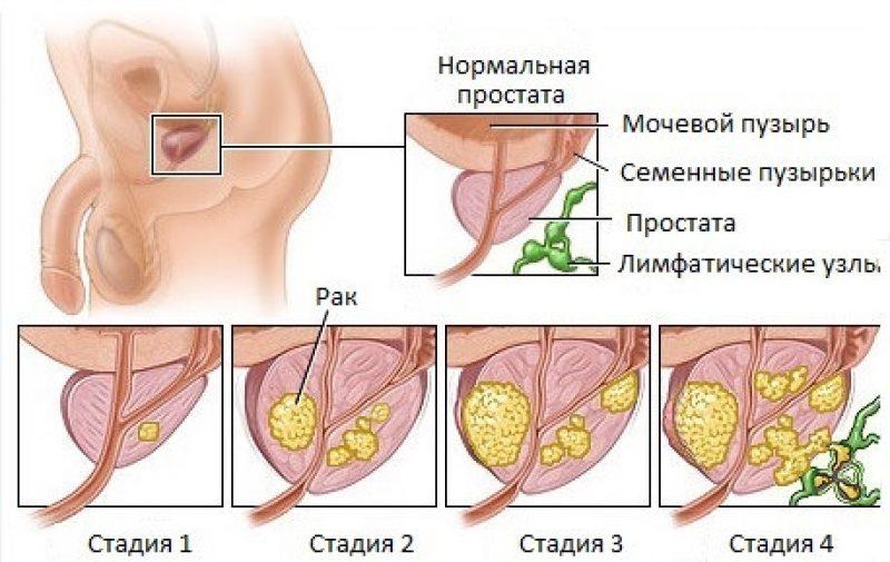 Стадії раку простати