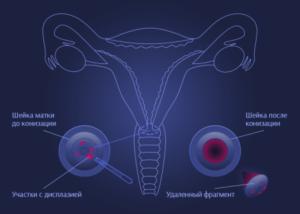 Конізація шийки матки до і після